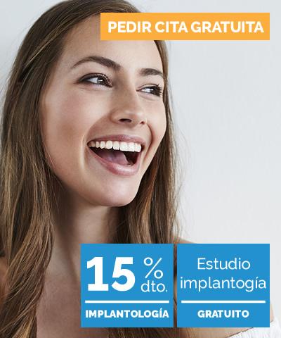 en qué consiste implantes dentales