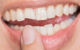 qué hacer ante rotura de un diente