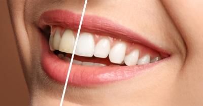 por qué tengo dientes amarillos