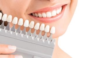 que son las carillas dentales
