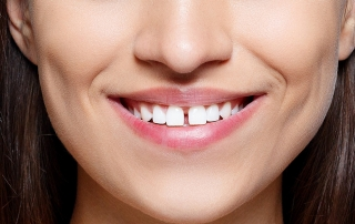 que es el diastema dental