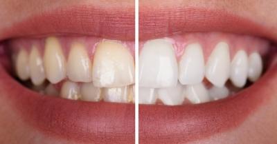 como funciona el blanqueamiento dental