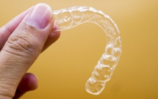 Preguntas frecuentes sobre ortodoncia invisible