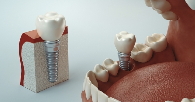 Qué son y para qué sirven los implantes dentales