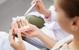 consejos cuidados implantes dentales
