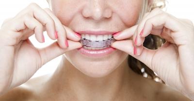 beneficios ortodoncia invisible