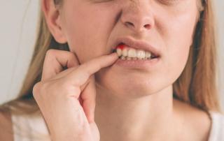 tratar encías inflamadas