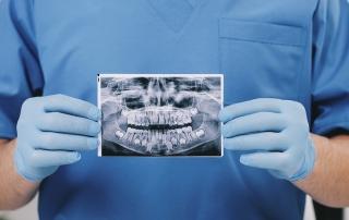 ¿qué es una radiografía dental?