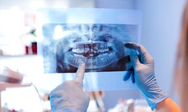 cirugía maxilofacial en Alicante y Valencia