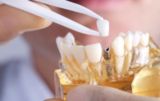 implantologia-dental