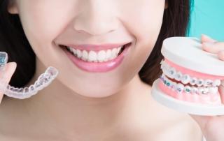 tipos-de-ortodoncia