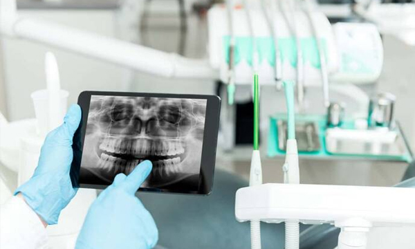 diagnóstico por imagen dental en Alicante y Valencia