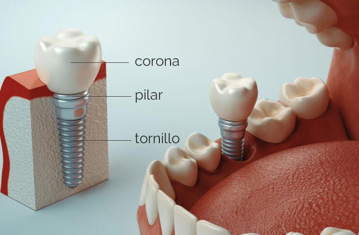 partes-implante-dental