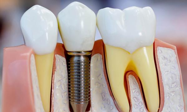 prótesis sobre implantes dentales en alicante y valencia