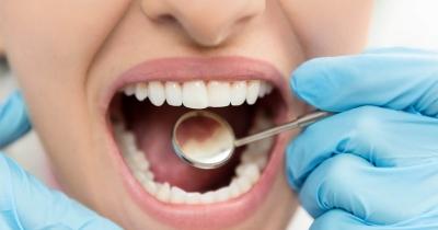 causas-de-la-hipoplasia-dental