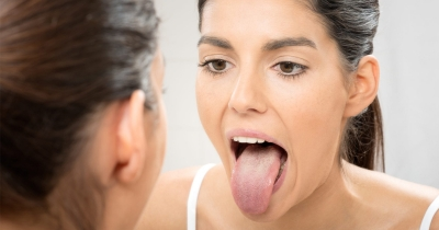 papilas-gustativas-inflamadas