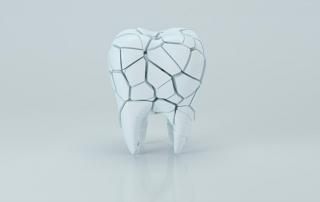 fisura-dental-duele
